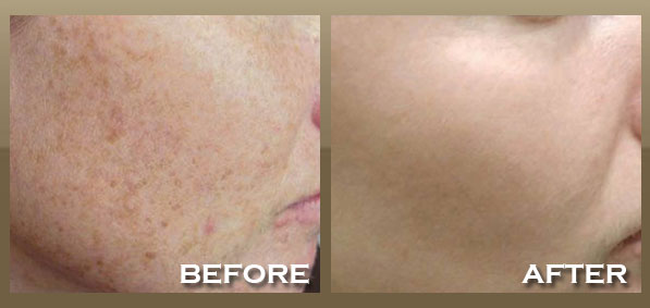 Example Results for IPL Photo Facial