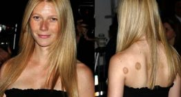 Cupping: detox like the celebs