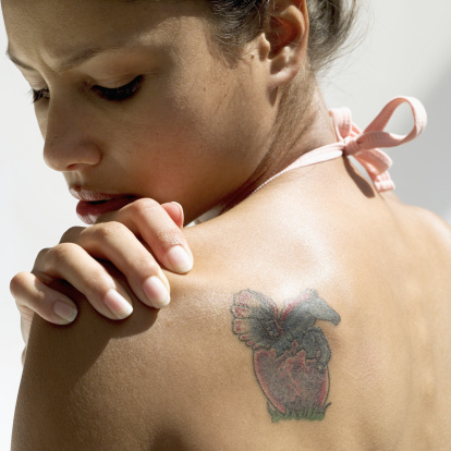 Quicker tattoo removal technology comes to phoenix for Tattoo removal az