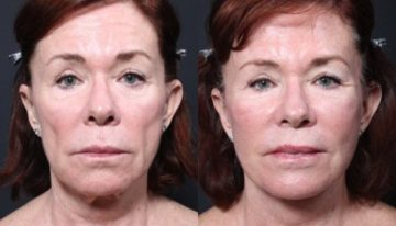 Ask the Plastic Surgeon, Dr. Repta: How to Achieve a Natural Facelift