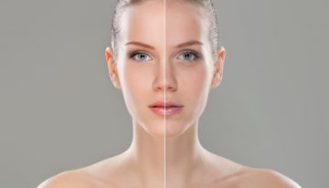 Ask the Plastic Surgeon, Dr. Repta: Speedy Recovery and Preparation