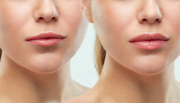 Ultra Smooth Skin Introduces Beautiful Lips Treatment