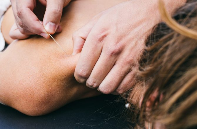 Acupuncture: Your Secret Weapon Against Holiday Stress