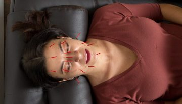 Is Acupuncture the New Botox?