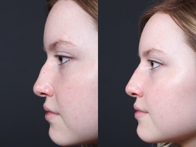 Ask the Plastic Surgeon, Dr. Repta: Non-surgical Rhinoplasty