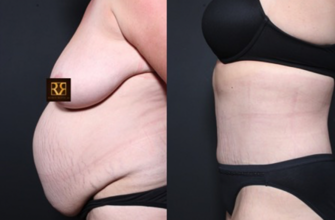 Ask the Plastic Surgeon, Dr. Repta: Fix a Hernia & Get a Tummy Tuck at the Same Time?